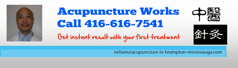 Acupuncture in Brampton, Mississauga